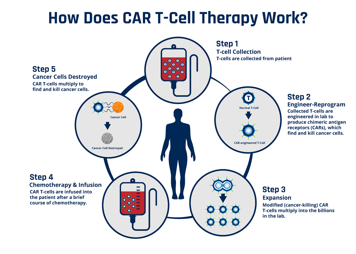CAR T-cell photo